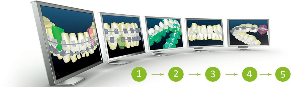 Behandlungsablauf visualisiert